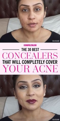 If you have acne-prone skin, use a full-coverage, opaque concealer that comes in a pot or stick form. Makeup artist Vincent Oquendo recommends this type of concealer since it has grip and adheres to your skin longer. Here are the 30 best concealers to help conceal acne, in no particular order: