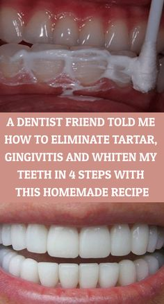 A Dentist Friend Told Me How To Eliminate Tartar, Gingivitis And Whiten My Teeth In 4 Steps With This Homemade Recipe - Power of Natural Life