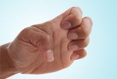 dystonia:  10 Ways to Exercise Hands and Fingers |  http://www.webmd.com/osteoarthritis/oa-treatment-options-12/slideshow-hand-finger-exercises?ecd=wnl_art_071312