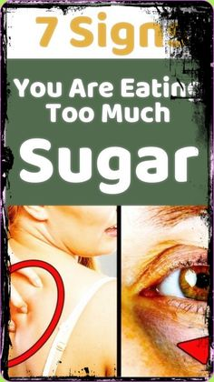 Just 7 Signs You Are Eating, Too Much Sugar #EatingTooMuchSugar How To Stay Healthy, Healthy Life, Foods That Contain Calcium, Daily Health Tips, Ate Too Much, Leg Pain, Facial Care, Productivity, Mindset