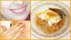 Végre egy igazi és működő arcbőrfehérítő és feszesítő otthoni krém!!! Peanut Butter, Ice Cream, Pudding, Ethnic Recipes, Desserts, Yogurt, No Churn Ice Cream, Tailgate Desserts, Deserts