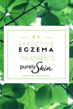Eczema treatments for sensitive skin