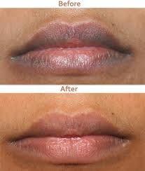 e7cffccd82dd2b0dddf44c4480351175 - How To Get Rid Of Dark Lips Caused By Smoking