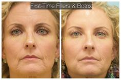 It's more than possible to give yourself a non-surgical facelift yielded by stimulating your face with facial reflexology and face gymnastics. Facial toning exercises lift the face skin with great results for a long-term energy facelift without surgery. Do Facial Exercises Work, Face Lift Exercises, Fitness Exercises, Sagging Face, Facelift Without Surgery, Natural Face Lift, Face Yoga, Face Wrinkles