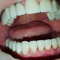 Zahnimplantate haben gegenüber Prothesen viele Vorteile. Sie halten lange sind als Zahnersatz nicht zu erkennen Sie fühlen sich beim Sprechen und Kauen wie eigene Zähne an. Durch Implantate wird der Knochenabbau im Kiefer stark verringert oder hört sogar ganz auf da der Körper die künstliche Wurzel als echte akzeptiert : : : : : : : : : #toothache #dental #zahnarztberlin #zahnarztberlin #zahnarztpraxis #berlin #zähneputzen #zahn #teeth #tooth #toothless #extraction #cirugiabucal #oralsurgery…