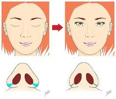 Phẫu thuật thẩm mỹ chỉnh sửa các khiếm khuyết ở mũi với hiệu quả cao mà không để lại sẹo là mong muốn của hầu hết các chị em xin chia sẻ kinh nghiệm qua bài