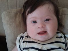 Meet Louise, My 4-Month-Old Daughter With Two Arms, Two Legs and One Extra Chromosome