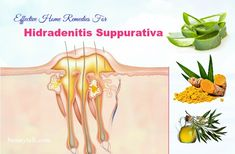 Today's article will show you 16 most effective home remedies for hidradenitis suppurativa (acne inversa) that work naturally. Cold Home Remedies, Natural Health Remedies, Herbal Remedies, Tea Tree Oil, Natural Treatments, Herbalism, The Cure, Make It Yourself, Nature