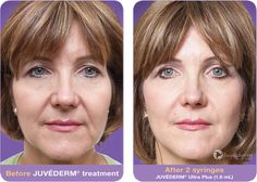 Frequently asked questions about Juvederm