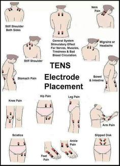 TENS Electrode Placement Chart