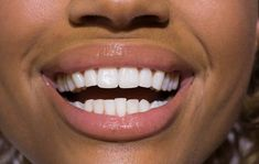 Dental or Tooth whitening