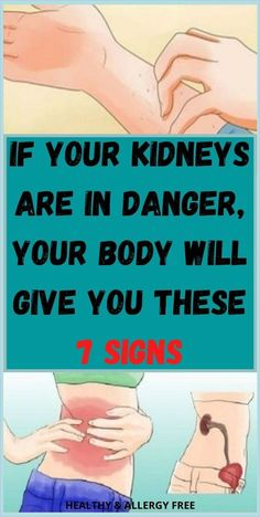 If Your Kidneys Are In Danger, Your Body Will Give You These 7 Signs Healthy Heart Tips, How To Stay Healthy, Healthy Brain, Holistic Diet, Holistic Approach, Natural Cure For Arthritis, Intimate Wash, Health Planner, Healthy Lifestyle Habits