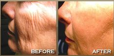 mask that tighten pores and remove wrinkles in just 15 minutes Amazing mask that tighten pores and remove wrinkles in just 15 minutesAmazing mask that tighten pores and remove wrinkles in just 15 minutes Laser For Wrinkles, Prevent Wrinkles, Beauty Skin, Health And Beauty, Face Beauty, Healthy Tongue, Remove Skin Tags Naturally, Tighten Pores, Skin Tag Removal
