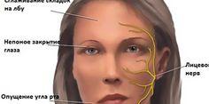 Лечебная гимнастика при НЕВРИТЕ лицевого нерва