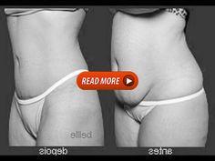 Como Reduzir O Estômago Sem Cirurgia - YouTube Youtube Share, Health Fitness, Surgery, Fitness, Health And Fitness