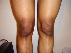 6 Home Remedies To Get Ride Of Of Black Knees And Elbows!!