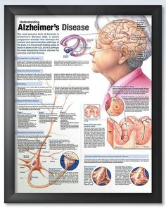 Understanding Alzheimer's Disease 20x26 Anatomy Poster #Alzheimer'sDiseasenursing www.seniorcarecentral.net