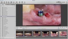3 Simple Steps to keep all Your Photos Available and Shareable in a Dental Practice