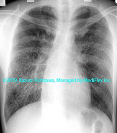 11. その他の肺疾患 症例098:サルコイドーシス 胸部単純X線写真,『コンパクトX線アトラスBasic 胸部単純X線写真アトラス vol.1 肺』 Radiology
