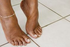 How to Kill Toenail Fungus With Bleach