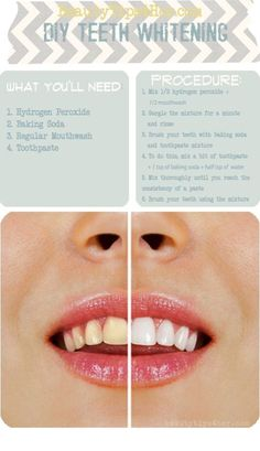 Homemade teeth whitening. I tried this and it worked.. Not quite like the picture but it get it a shade brighter