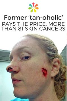 tanning and the risks of skin cancer Indoor-tanning-increases-early-risk-of-skin-cancer in about 40% percent of cases, bccs were located on sites other than the head and neck such as the trunk, and the association with indoor tanning was stronger for tumors occurring on these sites.