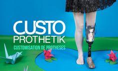 Custoprothetik needs you - http://www.kisskissbankbank.com/custoprothetik