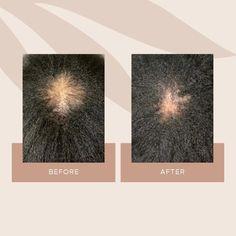 Vegamour | Vegan Lash, Brow and Hair Growth Serums that Work.