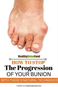 However, if they were more publicly displayed, you_d notice that many of your close friends and family probably suffer from a strange bump. Herbal Remedies, Health Remedies, Home Remedies, Natural Remedies, Health And Beauty Tips, Health Tips, Health And Wellness, Health Fitness, Bunion Remedies