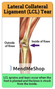 LCL strains & LCL tears - causes, symptoms, diagnosis and treatment options for lateral collateral ligament injuries. Arthoscopic knee surgery may be required for LCL complete tears or a meniscus repair may be necessary as well. Torn Knee Ligament, Knee Ligaments, Ligament Tear, Patellar Tendonitis, Ligament Injury, Back Injury, Knee Injury, Knee Sprain Recovery, How To Strengthen Knees