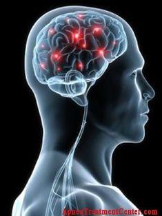 Insomnia remedies severe chronic insomnia,sleep apnea in adults sleep apnea research,sleep disorder clinic causes of sleep disorders. Sleep Apnea Remedies, Insomnia Remedies, Snoring Remedies, Central Sleep Apnea, What Causes Sleep Apnea, Brain Tumor, Brain Injury, Natural Sleep, Pharmacology