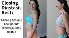 (115) diastasis recti exercises - YouTube