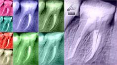#Endodonciacuernavaca #Endodonciamorelos #Endodonciamexico #Endodoncia #Cuernavaca