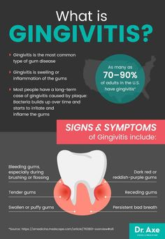 Do you have red, swollen gums? If so, you may have gingivitis, the most common type of gum disease. Click here to learn more about gingivitis. Teeth Health, Dental Health, Oral Health, Dental Hygiene, Dental Care, Healthy Teeth, Gum Health, Dental Assistant Study, Gum Disease Treatment
