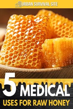 Honey has many health benefits, but it also has other uses, particularly in survival scenarios. In this video, SkinnyMedic shares 5 ways raw honey can be used for first aid. Urban Survival, Survival Food, Wilderness Survival, Survival Tips, Survival Skills, Emergency Supplies, Emergency Preparedness, Raw Honey, Shtf