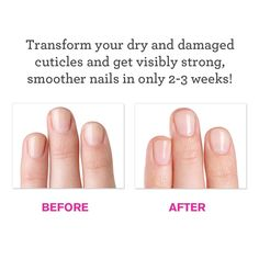 how to keep cuticles healthy