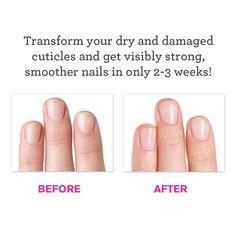 Cuticles DIY treatment recipe - What is the secret?