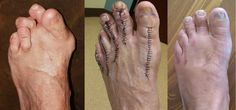 Austin Foot and Ankle Specialists treats Rheumatoid Arthritis. Lisfranc Injury, Ligament Tear, Podiatry, Foot Pain, Rheumatoid Arthritis, Nursing, Treats, Ankle, Health