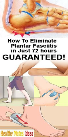 Fitness Tips for Exercising While Treating a Heel Spur - Women Fitness Magazine Plantar Fasciitis Surgery, Plantar Fasciitis Exercises, Plantar Fasciitis Treatment, Plantar Fasciitis Shoes, Leiden, Facitis Plantar, Foot Exercises, Foot Pain Relief, Heel Spur Relief