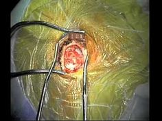Part 1 MVD surgery for Trigeminal Neuralgia