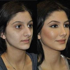 · · · One of our beautiful patients before and after and . surgery rinoplastia · · · One of our beautiful patients before and after and . Nose Plastic Surgery, Types Of Plastic Surgery, Celebrity Plastic Surgery, Plastic Surgery Before After, Rhinoplasty Surgery, Eyelid Surgery, Nose Surgery, Nose Reshaping, Rhinoplasty Before And After