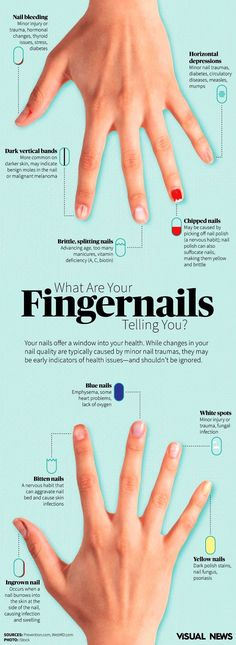 #Infographic: What are you #fingernails telling you?  Your #nails offer a window into your health. While changes in your #nail quality are typically caused by minor nail traumas, they may be early indicators of health issues - and shouldn't be ignored.
