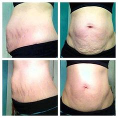 """If you're looking for a way to contour your curves  get that sexy body then this is for you! We all have a little something about our body that we wish we could change. The Ultimate Body Applicator will give you toner, tighter,  firmer skin in only 45 minutes!   Text """"WRAP"""" to 910-922-4117 to save $40 on a box of 4 wraps now!   Order here: www.WrapMeSkinny.com"""