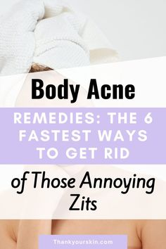 Do you know that there are natural ways to get rid of body acne? These treatments are not only efficient and safe, but they are also affordable. Here are 6 natural acne cures for the body to help you avoid costly medication.#zit remedies #body acne