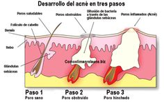 desarrollo-acne.png The best place to find how to have joyful life! http://myhealthplan.net