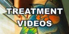 watch treatment videos