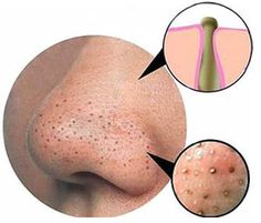 """How to we get rid of blackheads and whiteheads"""