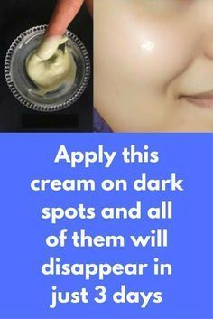 Apply this cream on dark spots and all of them will disappear in just 3 days This is a serum that will give you healthy and glowing skin. It is very effective for dark spots, you can remove all of them in just few days of use Ingredients required Rose water ALoe vera gel Glycerine Vitamin E capsule In a bowl take 1 tbsp aloe vera gel Add 2 tbsp rose …