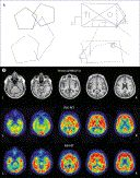 excellent article from Lancet Neurology from 2012 by the London Dementia research Team.  Dr Sebastian J Crutch explains that Posterior cortical atrophy (PCA) is a neurodegenerative syndrome that is characterised by progressive decline in visuospatial, visuoperceptual, literacy, and praxic skills. click to read
