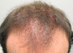 LPP in Male Pattern Alopecia